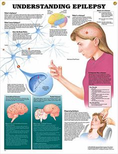 Understanding Epilepsy anatomy poster shows brain activity and defines the main forms of generalized and partial seizures. Neurology chart for doctors and nurses. Epilepsy Facts, Epilepsy Seizure, Epilepsy Awareness, Seizure Disorder, Migraine Relief, Alzheimer, Brain Activities, Seizures, Medical Information