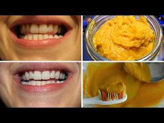 Remedies For Varicose Veins If you've ever cooked with turmeric powder, you probably had some yellow hands afterwards, along with some very delicious food. Who would have thought that … Varicose Vein Remedy, Varicose Veins, Baking Soda Coconut Oil, Cooking With Turmeric, Gum Disease Treatment, Coconut Oil Pulling, Teeth Health, Organic Turmeric, Turmeric Health
