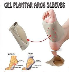 Oofos for plantar fasciitis plantar fasciitis pain moved,plantar fasciitis and bowen therapy heel pain plantar fasciitis pregnancy,the best plantar fasciitis treatment magnesium citrate plantar fasciitis. Plantar Fasciitis Exercises, Plantar Fasciitis Treatment, Plantar Fasciitis Shoes, Foot Exercises, Arch Support Shoes, Foot Pain Relief, Headache Relief, Foot Remedies, Flat Feet