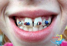 Niềng răng là phương pháp chỉnh hô được các nha sĩ hàng đầu tin dùng