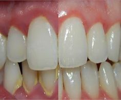 Whiten Your Teeth And Remove Stains