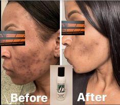 Dark Spots On Face, Lighten Dark Spots, Dark Marks On Face, Cream For Dark Spots, Bleaching Cream, Emu Oil, Uneven Skin Tone, Dark Skin, 7 Layers