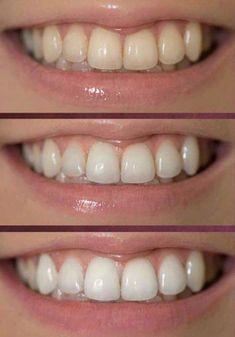 Para obtener un #20% de #DESCUENTO contactame por privado ! #brillo y #blanquea los #dientes impidiendo que se forme la #placa. Se caracteriza por su formulación especial que #no #contiene #peróxidos #dañinos. #AP24 Whitening Fluoride Toothpaste también contribuye a #eliminar las #manchas y #prevenir las #caries. Ap 24 Whitening Toothpaste, Whitening Fluoride Toothpaste, Beauty Skin, Health And Beauty, Aloe Vera, Galvanic Body Spa, Beauty Secrets, Beauty Products, Vestidos