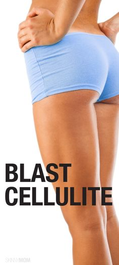 Cellulite-Blasting Exercises for a Toned Booty and Thighs Great exercises for getting rid of cellulite.Great exercises for getting rid of cellulite. Causes Of Cellulite, Reduce Cellulite, Cellulite Exercises, Cellulite Cream, Anti Cellulite, Fitness Diet, Fitness Motivation, Health Fitness, Fitness Weightloss