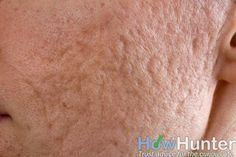 How to Get Rid of Acne Scars Overnight Fast   HowHunter
