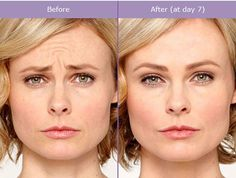 """Daniel Daube Fellowship Trained and Board Certified Facial Plastic Surgeon explains how Botox is NOT a """"one-size-fits-all"""" and that it does not work this. Botox Before And After, Dental Cosmetics, Botox Injections, Teeth Bleaching, Rides Front, Dermal Fillers, Cosmetic Dentistry, Laser Hair Removal, Natural Remedies"""