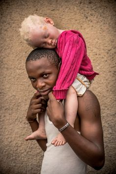 Photo report of People with Albinism in the Congo DRC Albino African, Beautiful Children, Beautiful People, Jazz Musicians, Fade To Black, Niece And Nephew, Black People, Textured Hair, Cute Babies