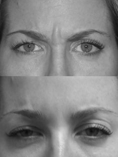 """#Botox injected in the glabella area to get rid of the """"angry look"""""""