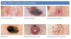 The Skin Cancer Foundation Skincancer On Pinterest