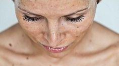Máte kožní skvrny nebo stařecké skvrny? Přinášíme domácí lék k jejich odstranění.
