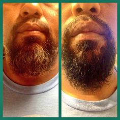 My husbands before & after pic (using Just for Men)