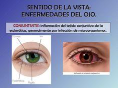 enfermedades-rganos-de-los-sentidos-4-728.jpg (728×546)