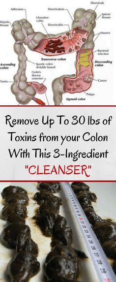 The BEST Colon Cleanser: How to Remove 30 lbs of Toxic Waste from your Colon? #CleanserForOilySkin Natural Detox Drinks, Natural Colon Cleanse, Colon Detox, Full Body Detox, Colon Cleansers, Fat Burning Detox Drinks, Weight Loss Detox, Lose Weight, Healthy Detox