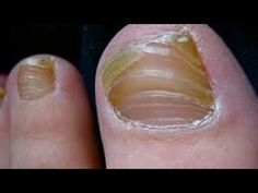 Vicks Vapor Rub Nail Fungus Beautiful 10 Brilliant Health and Beauty Hacks Of Vicks Vaporub – Cynthia Nail Designs Fingernail Fungus, Toe Fungus, Toenail Fungus Remedies, Fungal Nail, Cellulite Remedies, Cellulite Scrub, Fungus Toenails, Cellulite Workout, Sleep Apnea