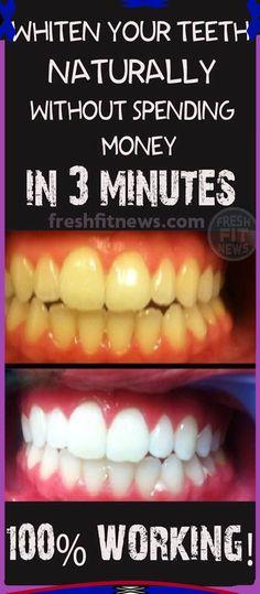 Teeth Whitening Methods, Charcoal Teeth Whitening, Natural Teeth Whitening, Whitening Kit, Homemade Teeth Whitening, Charcoal Toothpaste, Get Whiter Teeth, Clean Teeth, Beauty Hacks For Teens