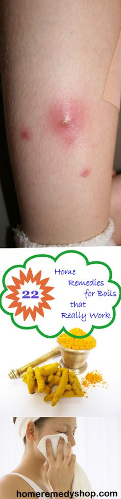 22 Home #Remedies for #Boils that Really Work - > #HomeRemedies