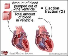 Diagram of Ejection Fraction