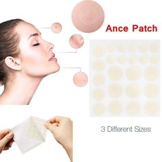 Acne Blemishes, Acne Skin, Pimples, Oily Skin, Sensitive Skin, Skin Tag On Eyelid, Tag Remover, Spot Treatment, Natural Remedies