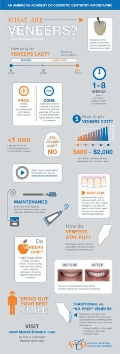 Ever wondered what a vaneer is? Well check out this infographic and you'll get a good insight. #dental #advice #infographic