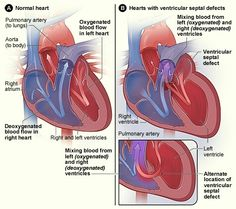 Normal heart and heart with ventricular septal defect