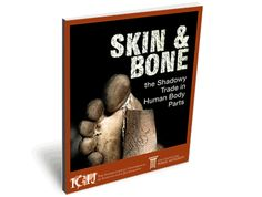 Skin And Bone: The Shadowy Trade In Human Body Parts is an 8-month project by the International Consortium of Investigative Journalists (ICIJ). ICIJ found the business of recycling dead humans has grown so large over the past decade that you can buy stock in publicly traded companies that rely on corpses for their raw materials, that are turned into everything from bladder slings to surgical screws to material used in dentistry or plastic surgery.