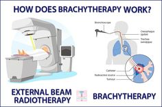 brachyterapi