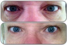 blodsprængning i øjet stress