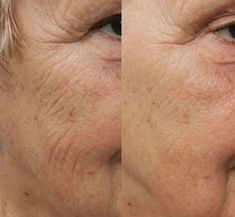Bio-Re-Peel - csc-cosmeticss Webseite! Anti Aging, Beauty, Face, Beauty Illustration