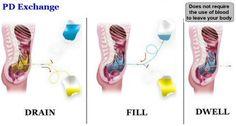 Baxter Nederland - Nefrologie - Peritoneale Dialyse
