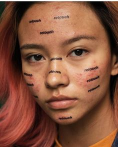 Acne is common, but it's easy to forget that when everything is Photoshopped to perfection. Artist Peter DeVito wants to change the conversation, so he's making acne on his models look beautiful. Beauty Photography, Portrait Photography, Inspiring Photography, Photography Editing, Photography Projects, Photography Of People, Creative Photography, Digital Photography, Beautiful People Photography
