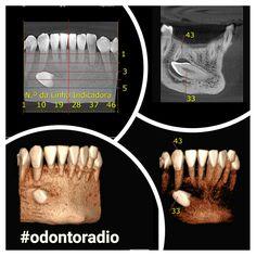 Dente 33 incluso em posição ectópica, apresentando coroa em íntimo contato com o ápice radicular do dente 43. #radiologia #odontoradio #odontologia #xray #tomografia #dentist #dentistry #oralradiology #ctbmf #radiologiaodontologica #tomography #radiology #odontoiatria #implantodontia #imaging #conebeam #lajeado #teutonia #implantes #orto #endodontia