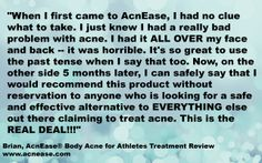 """""""Safe & effective alternative to EVERYTHING else out there claiming to treat #acne."""" --Brian, AcnEase Body Acne for Athletes Treatment Review www.acnease.com"""
