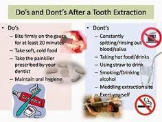 Do's and Dont's After Tooth Extraction. Daniel Steckler DMD in Lexington Kentucky @ kykidsdentist.com Teeth Surgery, Dental Implant Surgery, Teeth Implants, Dental Surgery, Tooth Extraction Aftercare, Dental Extraction, Tooth Extraction Healing, Dental Health, Dental Care