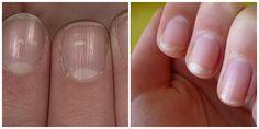 Bleke nagels: Als je nagelbedden er wat bleekjes uitzien, heb je mogelijk bloedarmoede door een te laag aantal bloedcellen. Een...