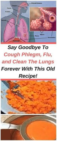 Natural Remedies For Flu This recipe is extremely effective in treating excessive mucus and coughing. It contains only natural ingredients and has no side effects. It is perfectly safe for children and adults. Cough Remedies, Herbal Remedies, Health Remedies, Bad Cough, Autogenic Training, Old Recipes, Natural Home Remedies, Natural Remedies, Home Remedies
