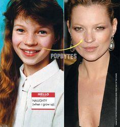 Facial symmetry plastic surgery not