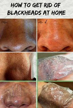 How to get rid of blackheads at home ? See how now!