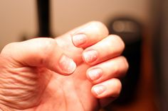 How-To Heal Nails After Artificial Nail Treatments -- I'll be glad I pinned this one day! Lol