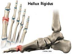 Hallux | Foot Conditions | Hallux Rigidus | Houston Methodist Orthopedics ...