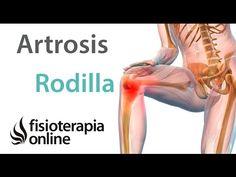 Artrosis de rodilla. Tratamiento mediante ejercicios, automasajes y estiramientos - YouTube