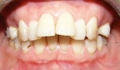 Nguyên nhân tại sao răng lại bị hô và giải pháp khắc phục