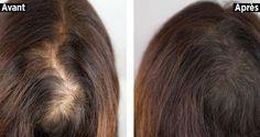 Comment utiliser l'huile de ricin pour remédier aux problèmes comme la perte de cheveux, les pellicules et les pointes fourchues.