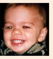 Retinoblastoma is a rare childhood cancer.  It can be caught early if you are aware of the signs.