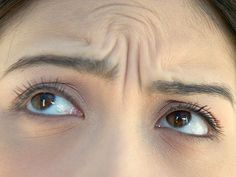 Anti-Aging Treatments For Forehead Wrinkes - How To Get Rid Of Wrinkles - Redbook  http://www.continentalcomforts.com/Kneading-Tapping-Neck-Massager-Heat/dp/B00MWZUHLI?field_availability=-1&field_browse=9472348011&id=Kneading+Tapping+Neck+Massager+Heat&ie=UTF8&refinementHistory=subjectbin%2Cprice%2Cbrand_name%2Ccolor_map%2Csize_name&searchNodeID=9472348011&searchPage=1&searchRank=salesrank&searchSize=12