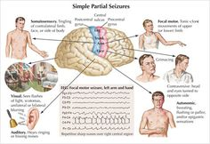 Temporal Lobe Seizure-Symptoms, Diagnosis & Treatment