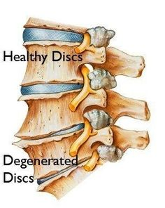 Degenerative Disc Disease ~~ Degenerative Disc Disease (DDD) is not a disease but rather a degenerative condition that at times causes pain from a damaged disc and is used to describe the normal changes in your spine discs as you age.  Spinal discs are soft, compressible discs that separate the vertebrae that make up the spine.  The discs act as shock absorbers for the spine, allowing it to flex, bend and twist. ...