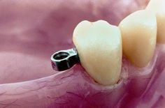 A Direct Retainer is any unit of a Removable Partial Denture (RPD) that engages an abutment tooth to resist displacement of RPD away from tissues. http://www.dentalcrest.com/direct-retainers-rpd/?utm_content=buffercc5ed&utm_medium=social&utm_source=plus.google.com&utm_campaign=buffer #DirectRetainer #RemovablePartialDenture #RPD #Dentist #Dentistry #Dental #OralHealth #DentalHealth #DentalStudents #Dentaltown #DentalPatientEducationIdeas