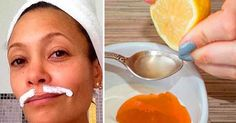 Every woman is having problems with facial hair, especially the hair above the upper lip. Women are using methods like waxing to remove facial hair. Face Care, Body Care, Beauty Secrets, Beauty Hacks, Female Facial Hair, Beauty Care, Hair Beauty, Tips Belleza, Laser Hair Removal