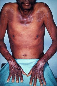 Diarrhea,Eczema and Dementia and other Skin Signs of Vitamin-B3 Deficiency Disease Pellagra - http://shraddhachawla.hubpages.com/hub/Diarrhea-Eczema-and-Dementia-and-other-Skin-Signs-of-Vitamin-B3-Deficiency-Disease-Pellagra