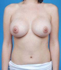 Amazing breast augmentation before and after results at http://www.drkevinbrenner.com/before-and-after-plastic-surgery-photos/breast-augmentation . Learn more about breast augmentation at http://www.drkevinbrenner.com/before-and-after-plastic-surgery-photos/breast-augmentation by an expert Beverly Hills plastic surgeon.  Call 310.777.5400 or visit http://www.drkevinbrenner.com/before-and-after-plastic-surgery-photos/breast-augmentation to schedule a breast augmentation consultation.
